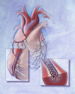 Sam Collins, Amy Collins, coronary artery disease, medical illustration, medical illustrator, cardiology, heart, medical art, illustration, healthcare