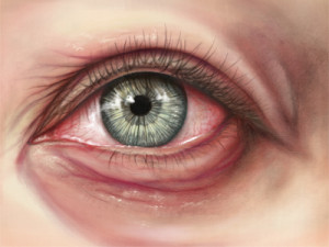 marie rossettie, left brain llc, eye, ocular, eye anatomy, allergy, medical illustration, medical illustrator, healthcare, medical art, eyeball