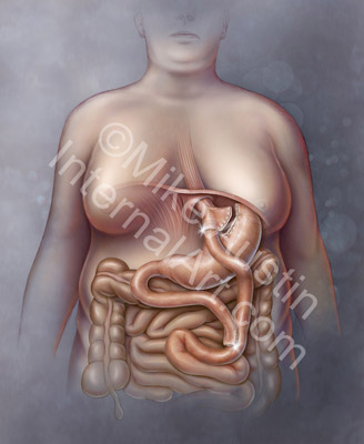 medical illustrator, medical illustration, medical art, medical artist, gastroenterology, scientific illustration