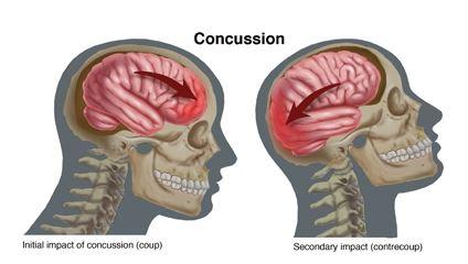 Marie Dauenhaimer Concussion
