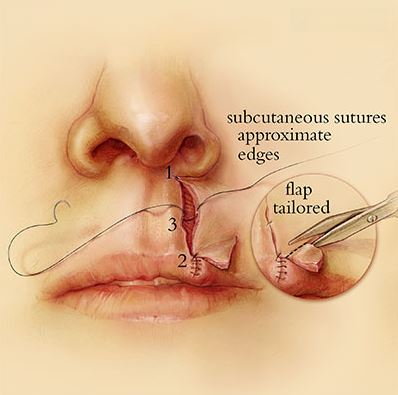 Lip Repair, Reconstructive Surgery, Jennifer Gentry, Gentry Visualization, Medical Illustration, Medical Illustration Sourcebook