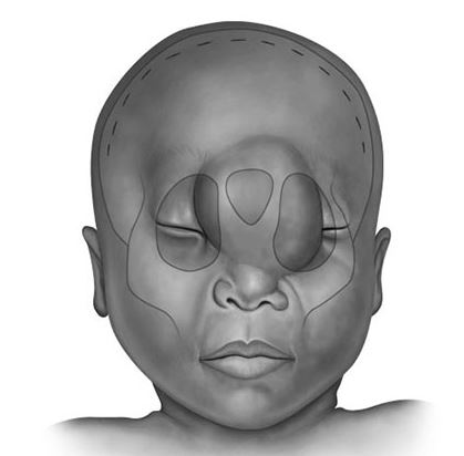 Pediatric Encephalocele, Kelly Kage, Reconstructive Surgery, Medical Illustration, Medical Illustration Sourcebook