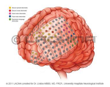 Lachina Implant