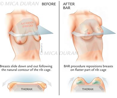 Breast Surgery, Medical Illustration, Mica Duran Studio, BAR Procedure, Medical Illustration Sourcebook, Reconstructive Surgery