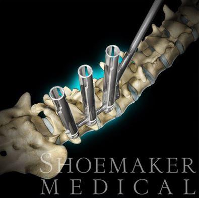 Shoemaker Medical Implant