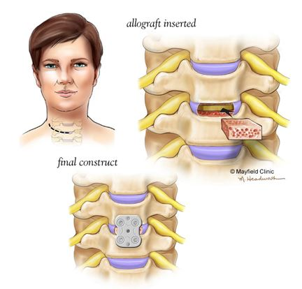 Anterior Cervical Discectomy and Fusion, Tonya Hines, Martha Headworth, Glia Media, Medical Illustration, Reconstructive Surgery, Medical Illustration Sourcebook