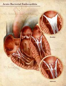Completed Acute Endocarditis Illustration