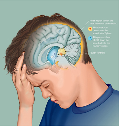 Pediatric Pinealoma, Anthony S. Baker, L'anatomie ASB