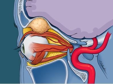 Dermoid Mass, Anthony S. Baker, L'Anatomie ASB