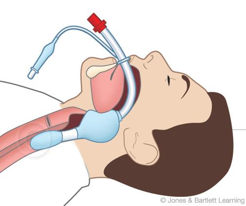 scihealth_intubation