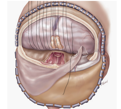 Dura placement over cranial floor defect from tumor removal in preparation for plate