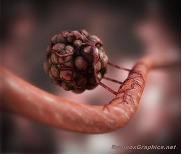 JohnHeras_EquinoxGraphics_Angiogenesis