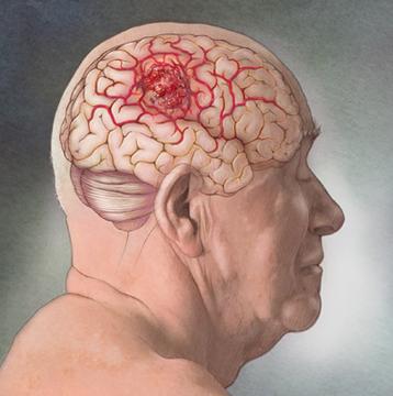 Cancer of the Brain - Glioblastoma