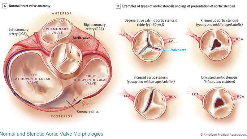 Lujoso Anatomy Of Heart Valve Galería - Anatomía de Las Imágenesdel ...