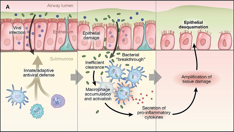 Asthma pathophysiology1