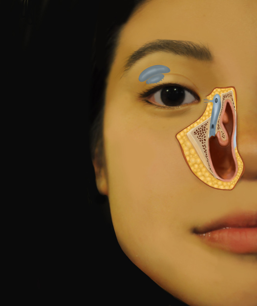 Lacrimal Gland, Jessica Foley