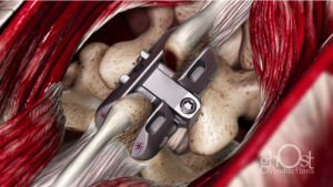 Spinous Process Fixation Animation Case Study: Spineology VIA
