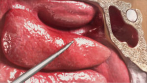Sinuplasty Animation Case Study: Medtronic NuVent