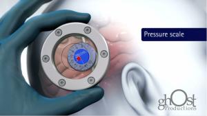Hydrocephalus Animation Case Study: Aesculap proGAV