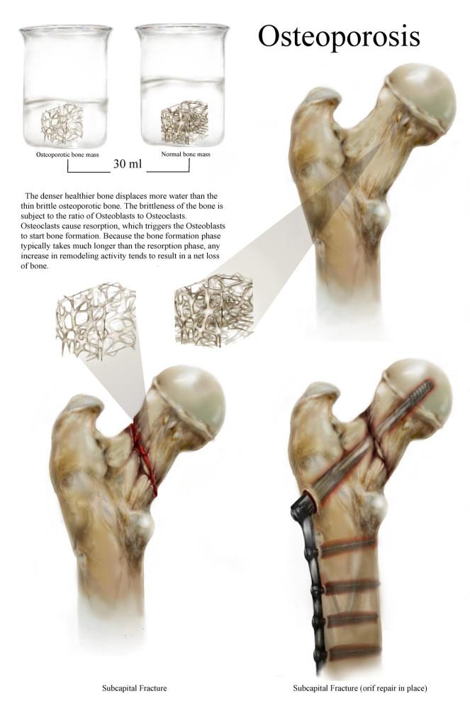 Osteoporosis, Jessica Foley