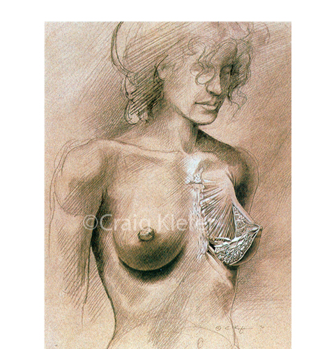 Breast Anatomy Craig Kiefer