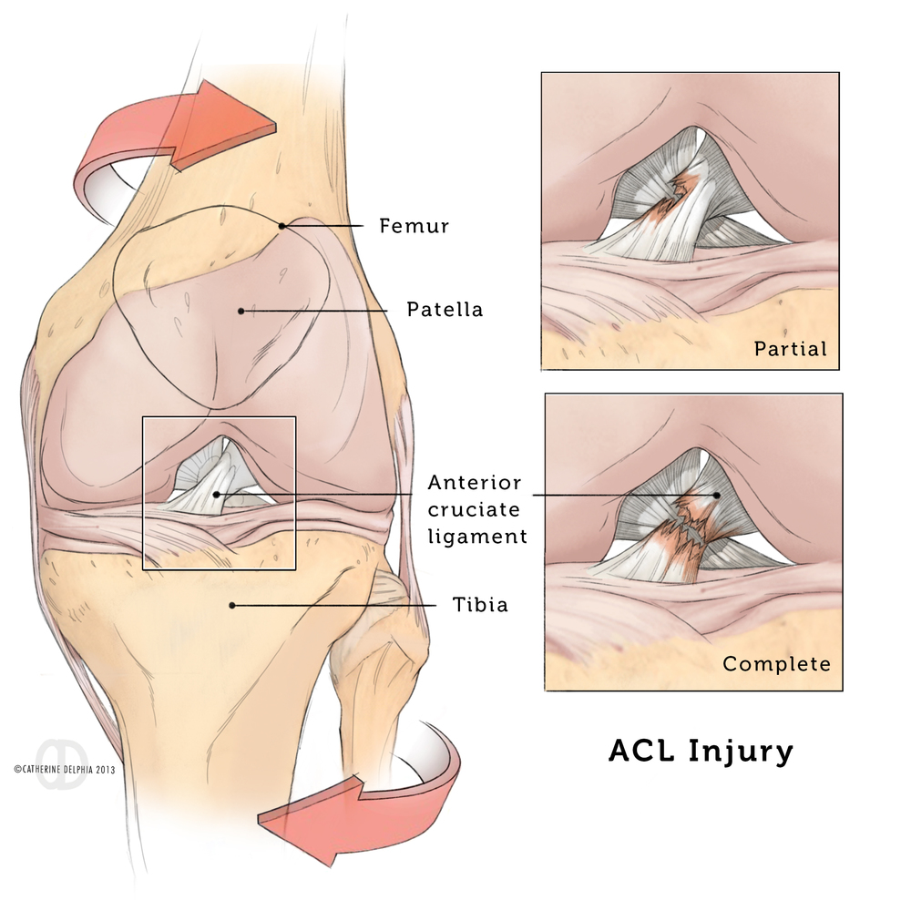ACL Injury, Catherine Delphia