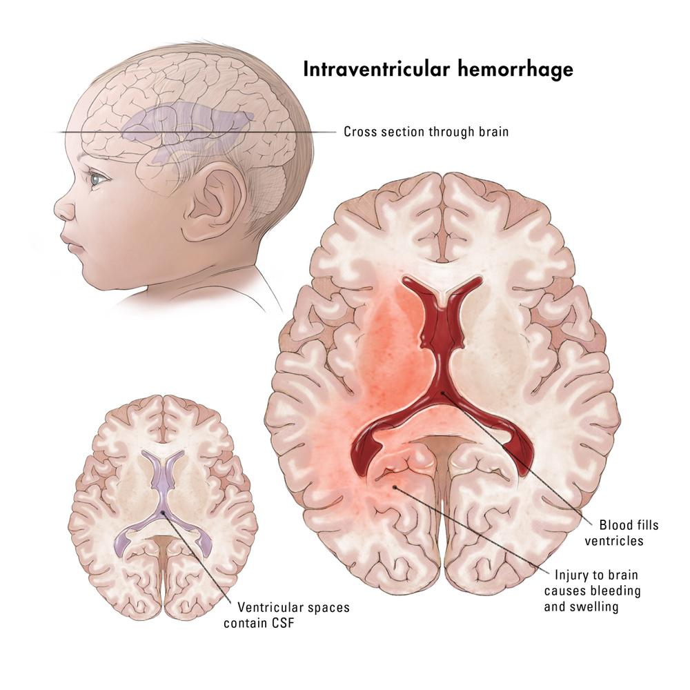Intraventricular hemorrhage, Catherine Delphia, MA, CMI