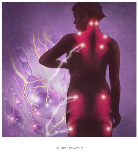 fibromyalga