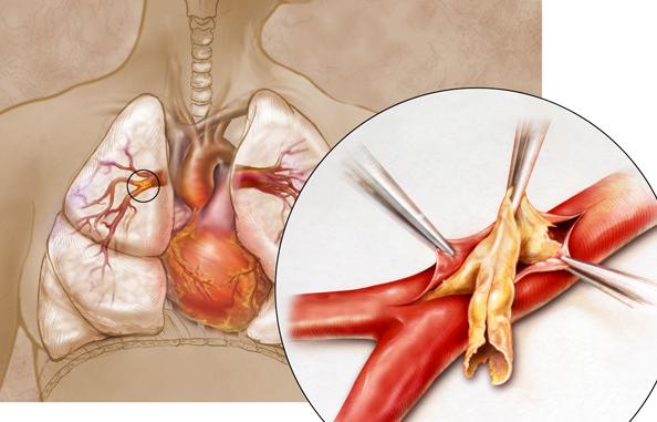 Endarterectomy Echo Medical Media