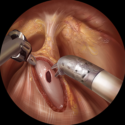 Robotic Kidney Transplantation Surgery