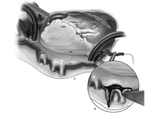 Stenotic PV Surgery