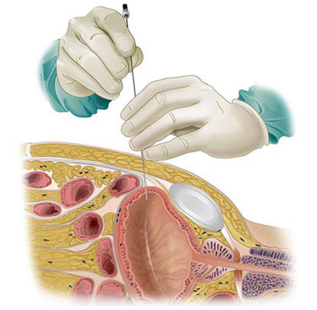 Uro-genital surgical procedure