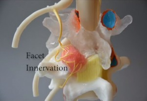 Pain Interventionists Aided by Unique Pain Model