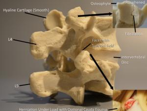 Subluxation Model