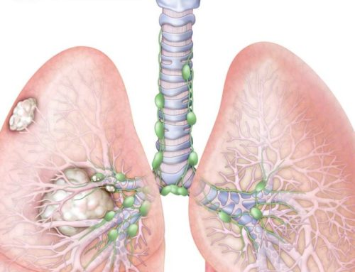 Body Scientific – Lung Cancer