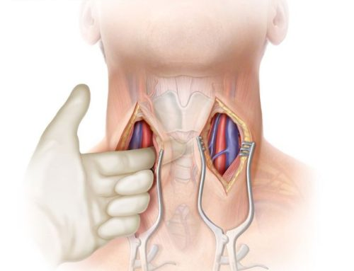 Body Scientific: Retropharyngeal Tunnel