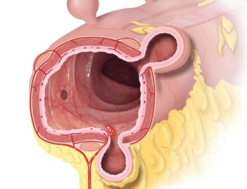 Kari C. Toverud: Colon W/ Bleeding Diverticulitis