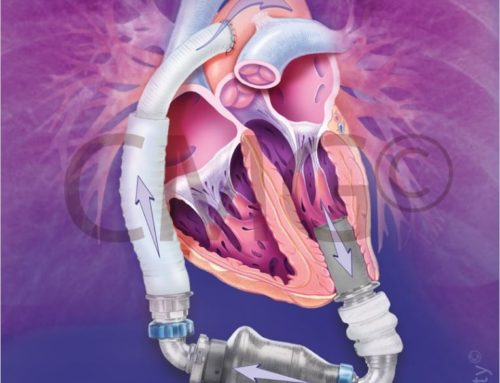 Chicago Medical Graphics – LVAD Heartmate II