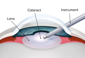 Cataract Surgery Illustrations