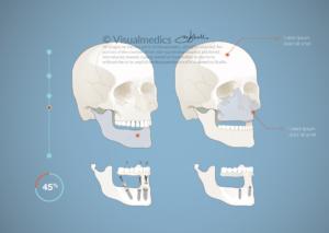 Odontologic illustration
