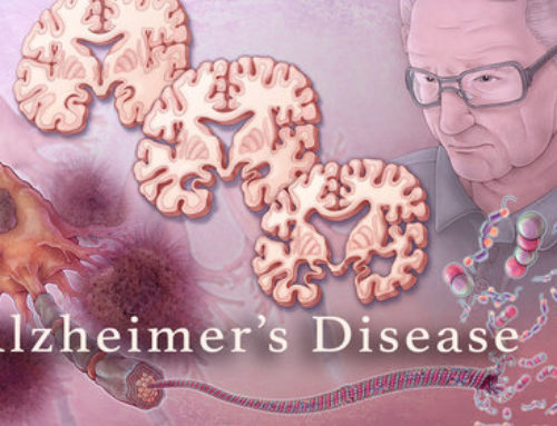 Alzheimer's  Disease, a Tragic Future for Our Aging Population