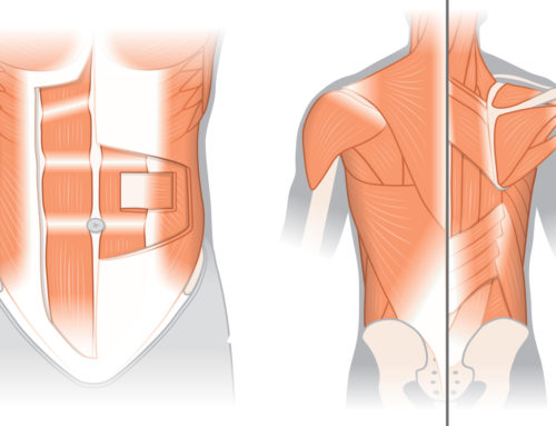 Normal Anatomy & Common Conditions of the Back by Third Left Studio