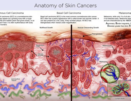 SilverLeaf Studios for TAP Integrative: Anatomy of Skin Cancers