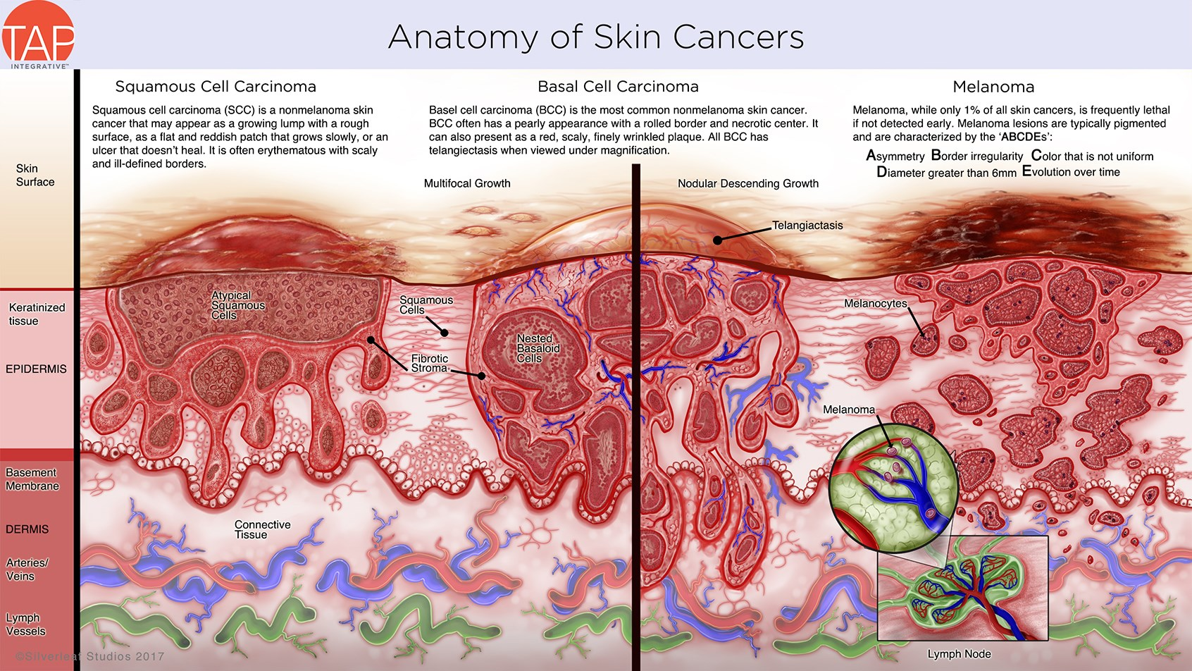 SilverLeaf Studios for TAP Integrative: Anatomy of Skin Cancers ...