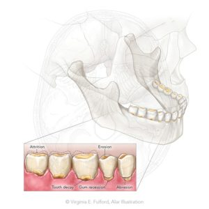 Alar Illustration Tooth Wear and Decay