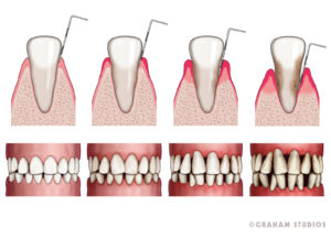 Graham Studios Tooth Decay Illustration