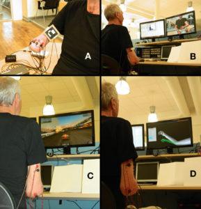 Virtual reality and phantom limb pain