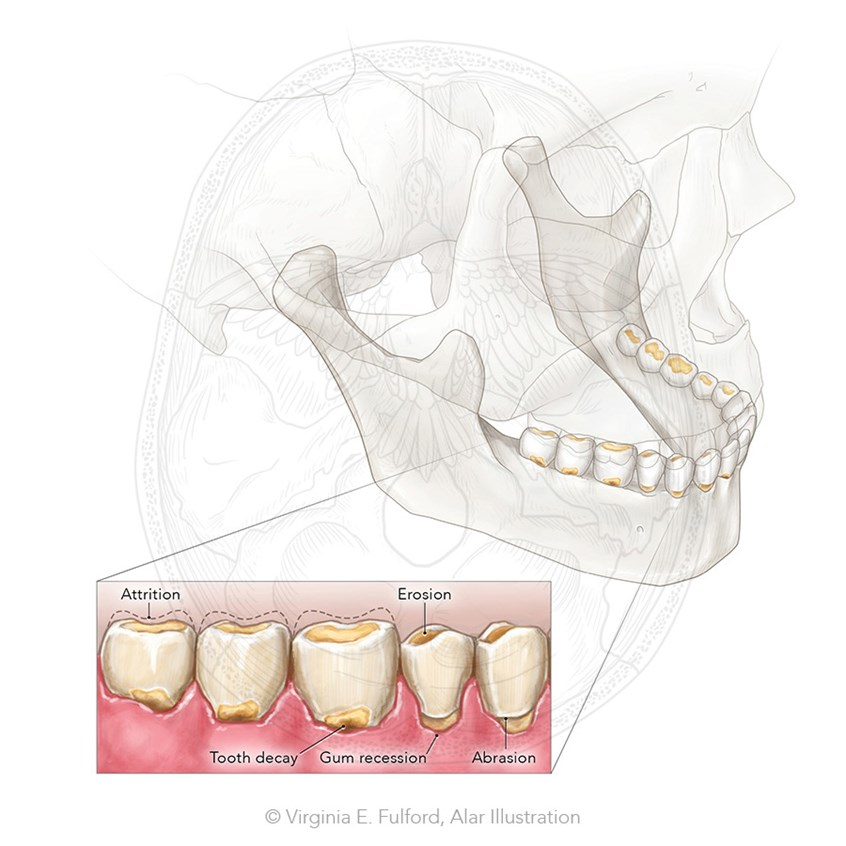 Alar Illustration - Tooth Wear and Decay
