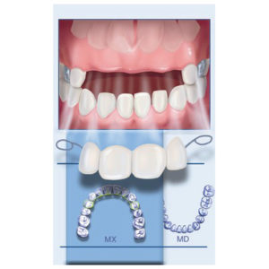 Mary K Bryson Dental Bridge Illustration