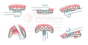 Thompson Medical Illustration Brushing Braces